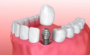 Dental Implants and Single Tooth Implants